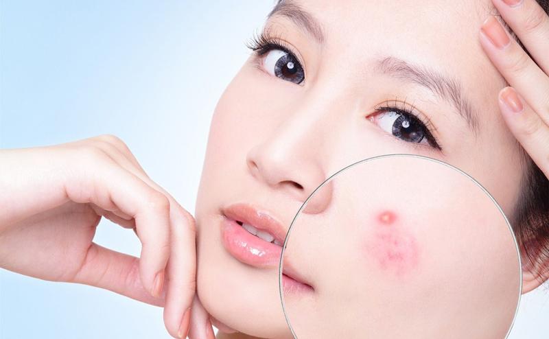 Giải pháp tối ưu cho da mụn an toàn hiệu quả